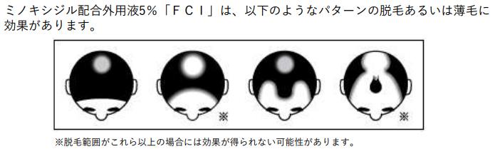 ミノキシジル配合外用液「FCI」
